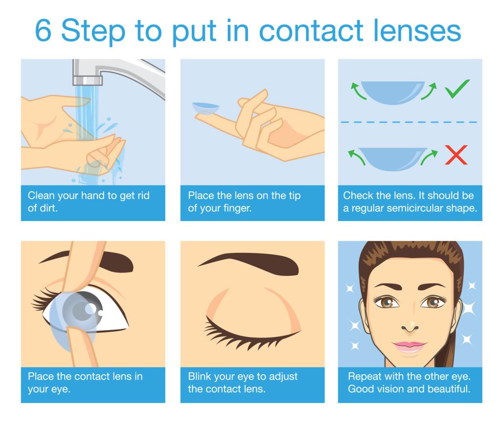 Plantation Eye Associates 107 1 1024x871 Contact Lenses